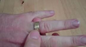 truco para sacar anillo atascado en el dedo