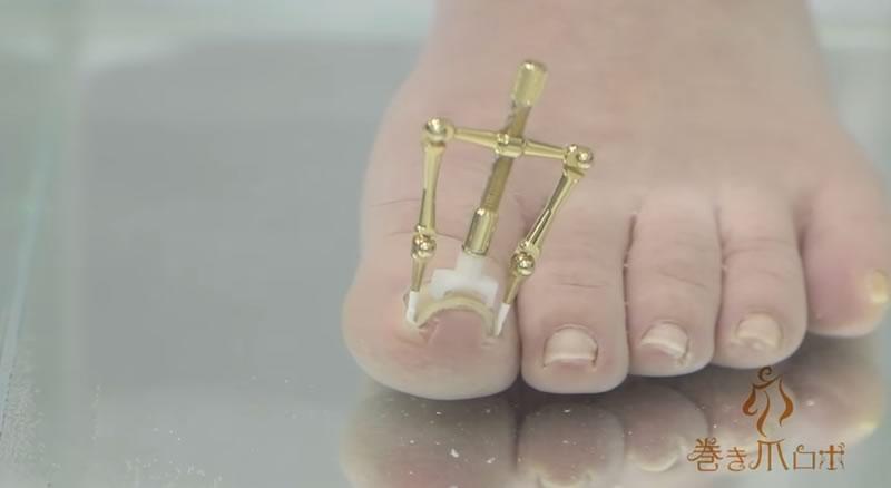 aparato que arregla las unas de pie enterradas - 04