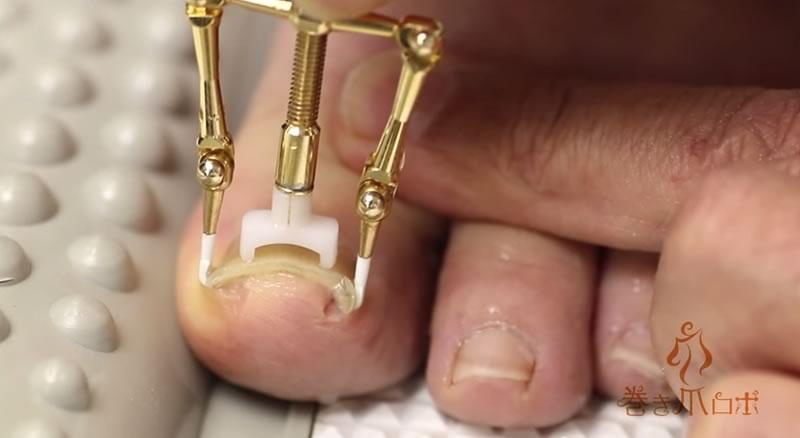 aparato que arregla las unas de pie enterradas - 05