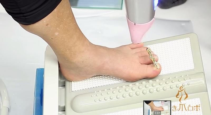 aparato que arregla las unas de pie enterradas - 06
